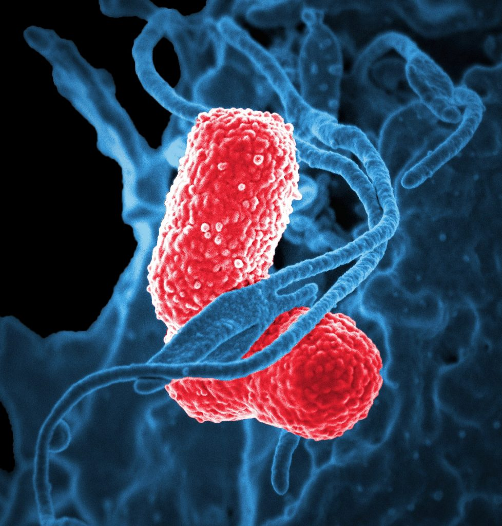 bacteria, klebsiella pneumoniae, 疾病, infección, microscópica, gram negativa, 1805121444